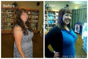 Althea Mommy Makeover